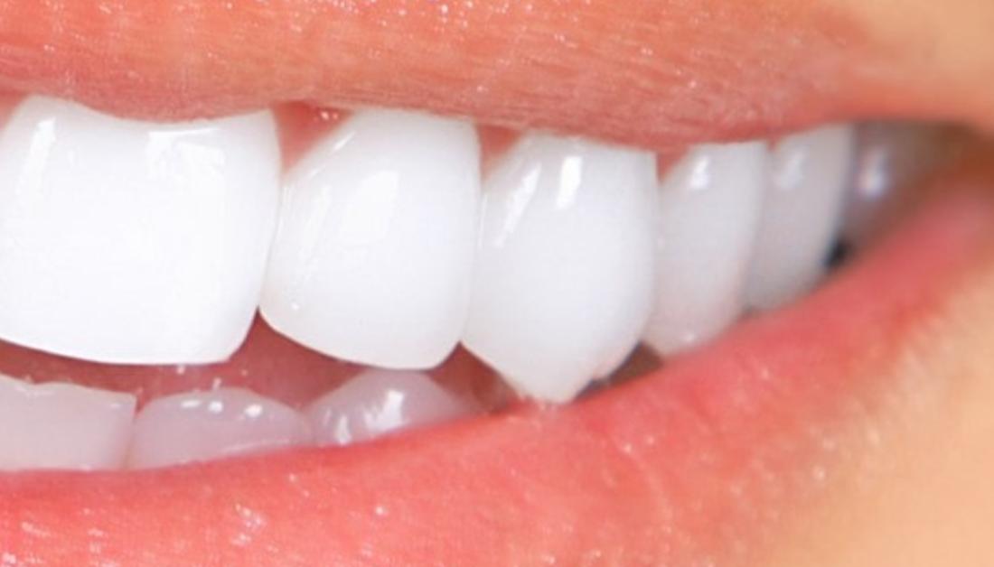 הלבנת שיניים לבנות